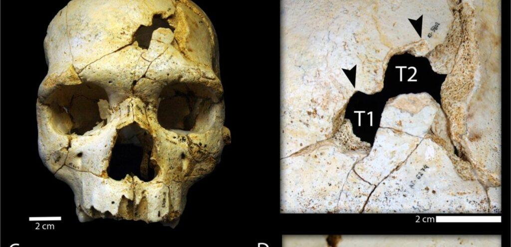 Les deux trous du crâne retrouvé